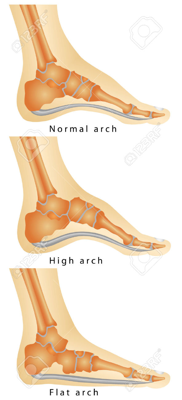 Arch Of Foot Set Of Flat Foot, High Arch Rheumatoid Arthritis.