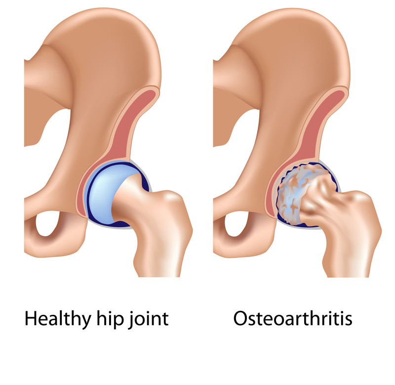 Hip Replacement Surgeons Clip Art.