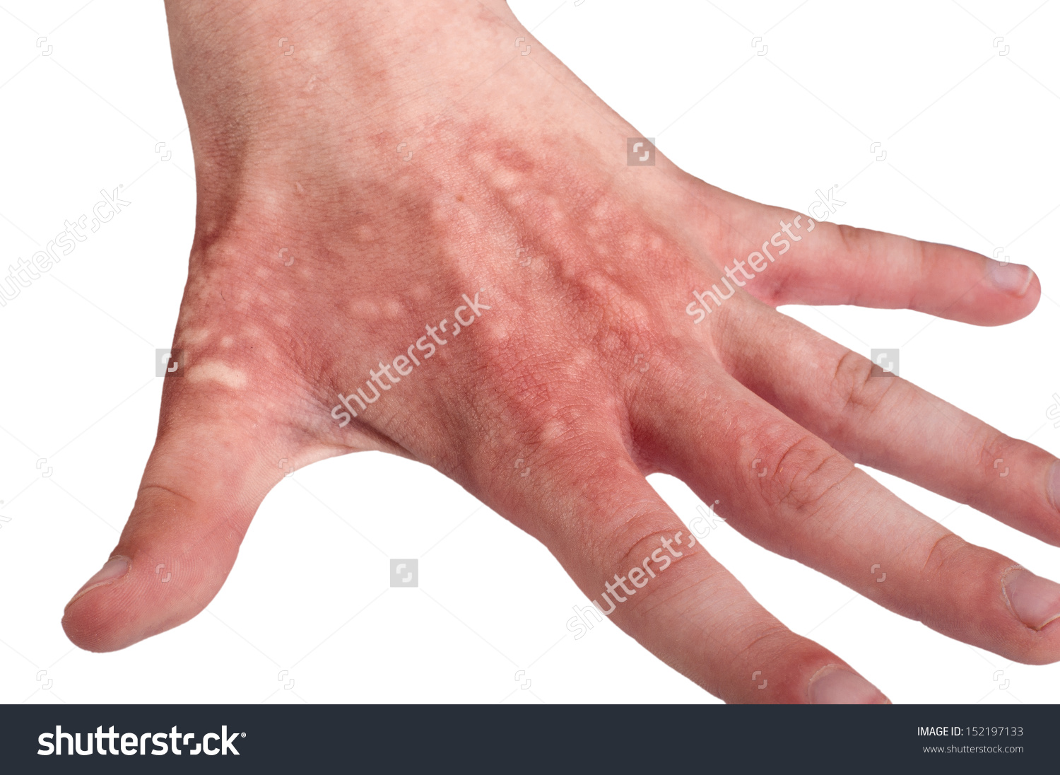 Hand Teenager Blisters Due Burns Hogweed Stock Photo 152197133.