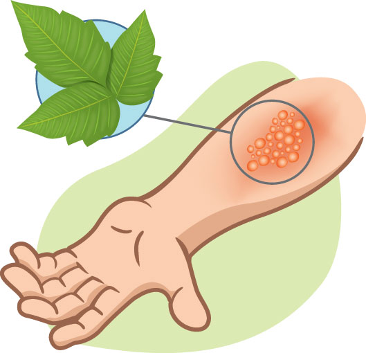 Best Home Remedies for Poison Ivy.