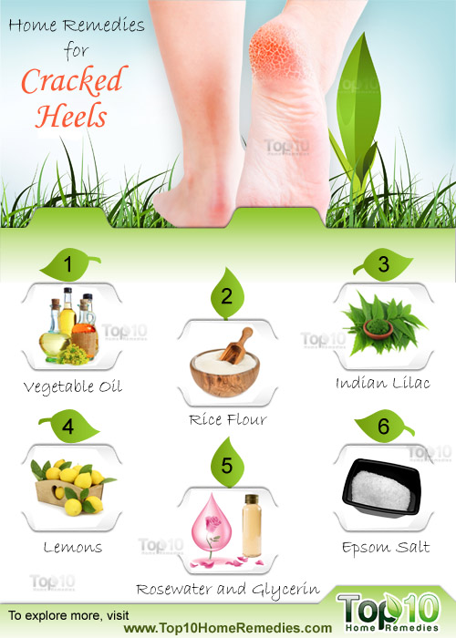 Home Remedies for Cracked Heels.