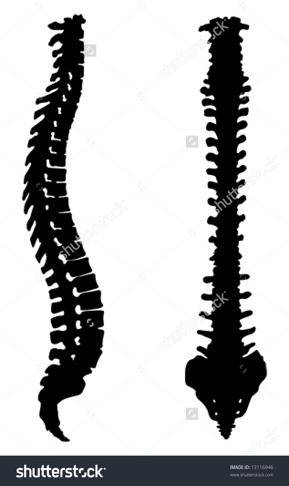 Frontal Lateral View Human Spinal Column Stock Vector 13116946.