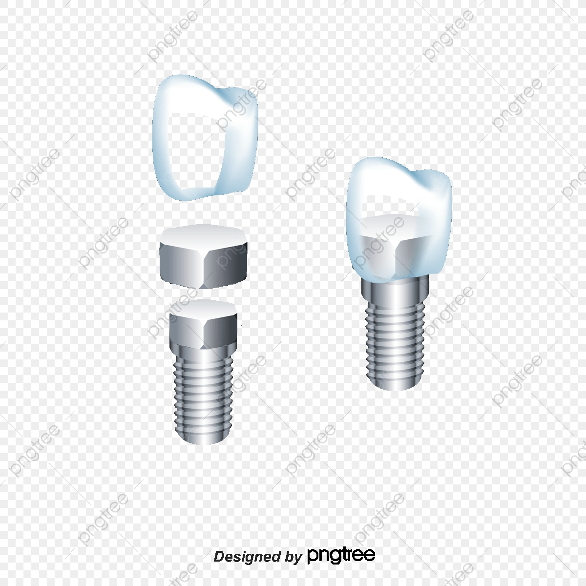 Implant Fillings, Crop, Tooth, Fill A Tooth PNG Transparent Clipart.