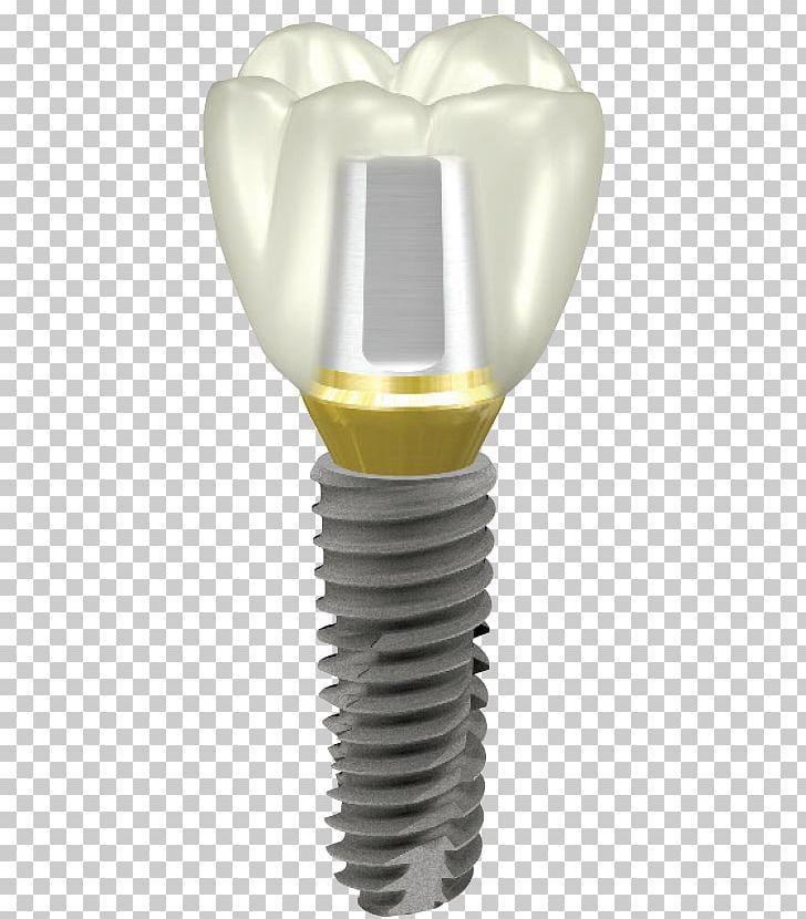 Dental Implant Abutment Dentistry OSSTEM IMPLANT PNG, Clipart.