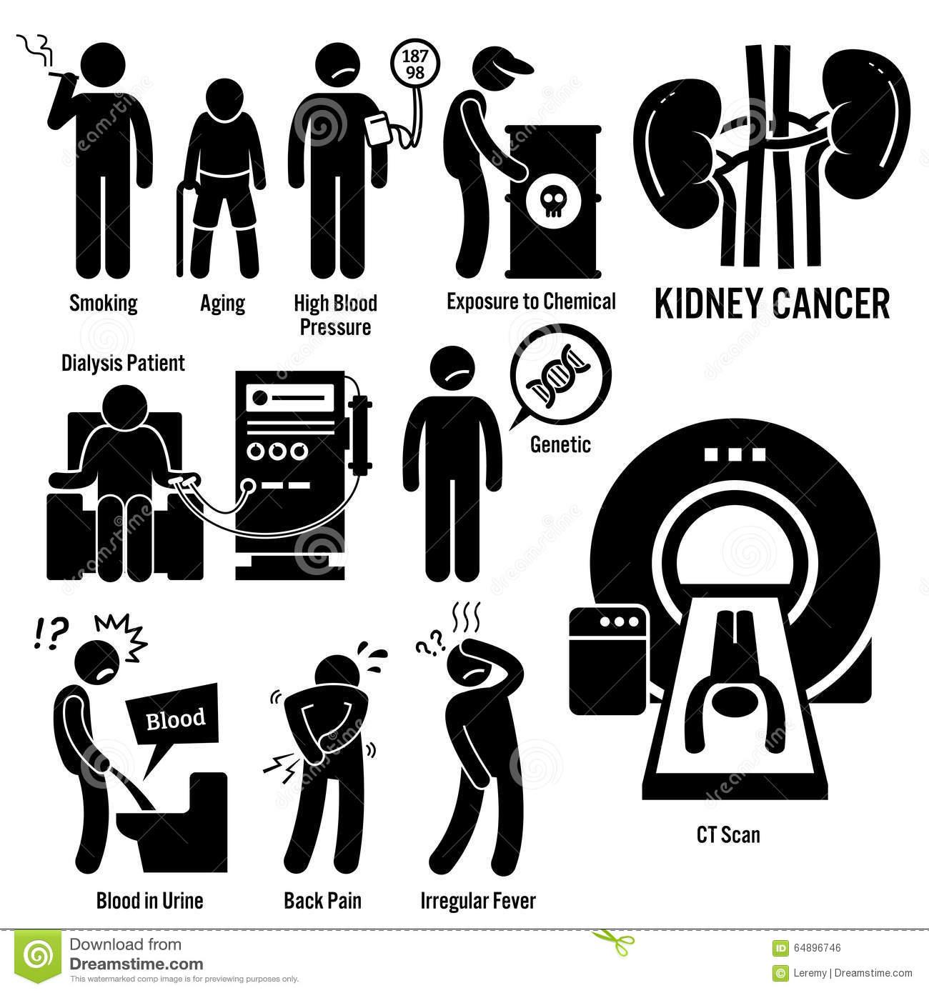 Kidney Cancer Clipart Stock Vector.
