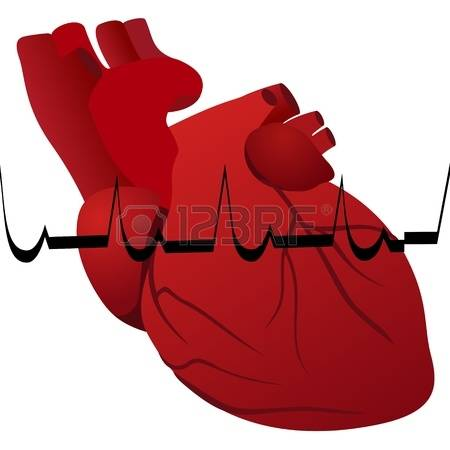 458 Infarction Stock Vector Illustration And Royalty Free.