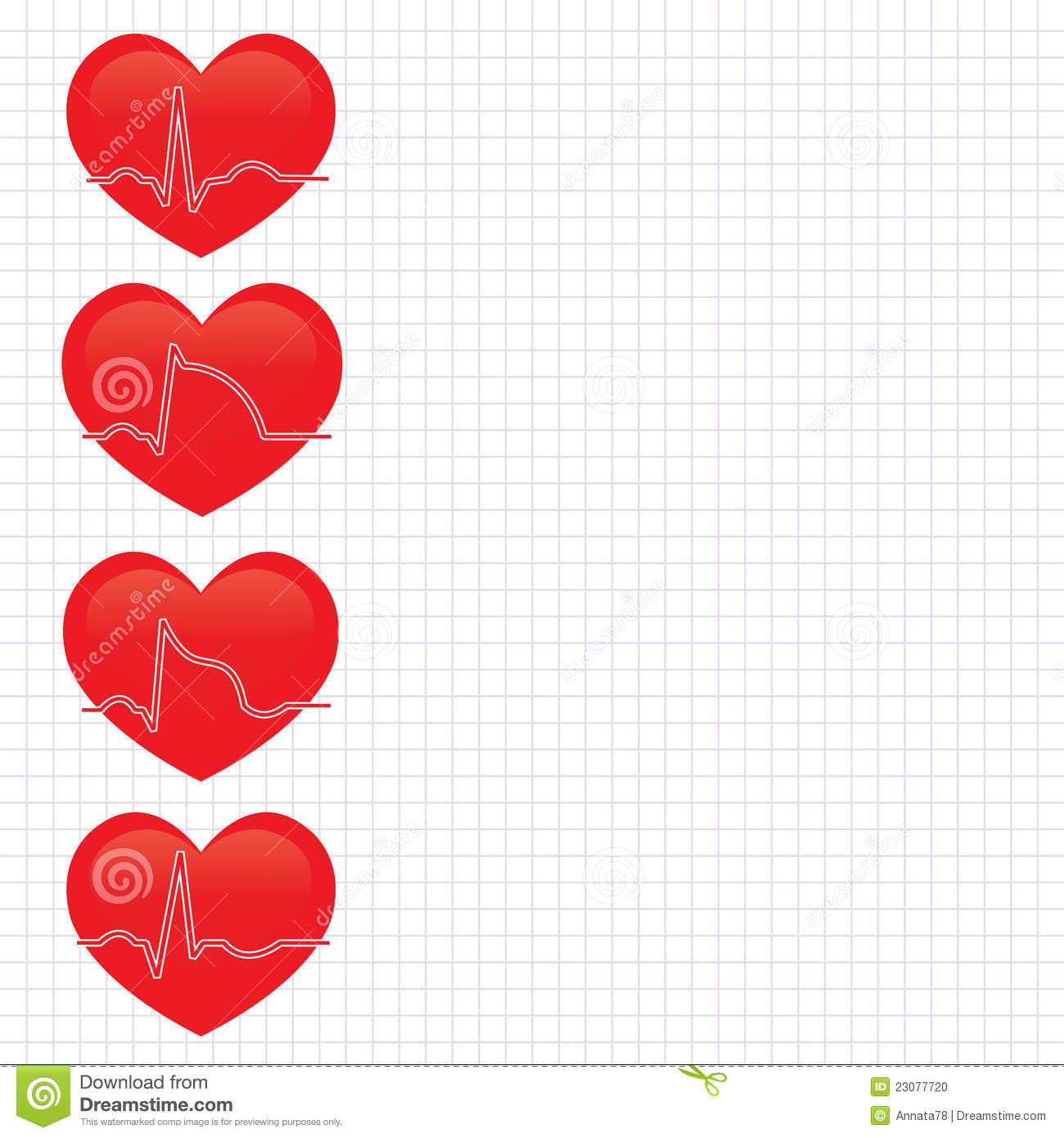 Stage Of Myocardial Infarction Stock Photo.