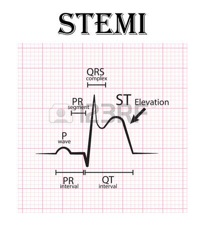 504 Infarction Stock Vector Illustration And Royalty Free.