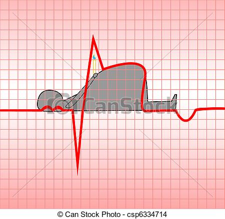 Myocardial infarction Stock Illustrations. 268 Myocardial.