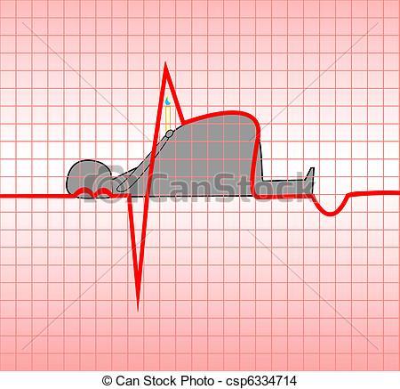 Myocardial infarction Stock Illustrations. 268 Myocardial.