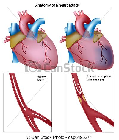 Infarction Illustrations and Clip Art. 516 Infarction royalty free.