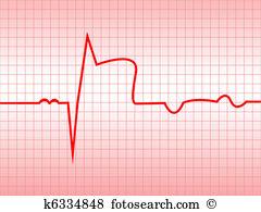 Myocardial infarction Clipart and Illustration. 112 myocardial.