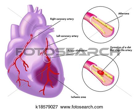 Clip Art of Myocardial infarction k18579027.