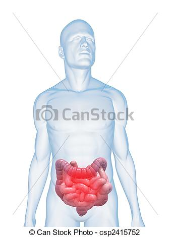 Clip Art of inflamed intestines.