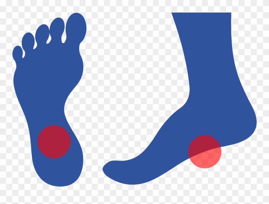 Plantar Fasciitis Is Caused By Inflammation Of A Thick Clipart.