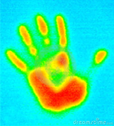 Infrared Photo Of Human Hand Stock Photos.