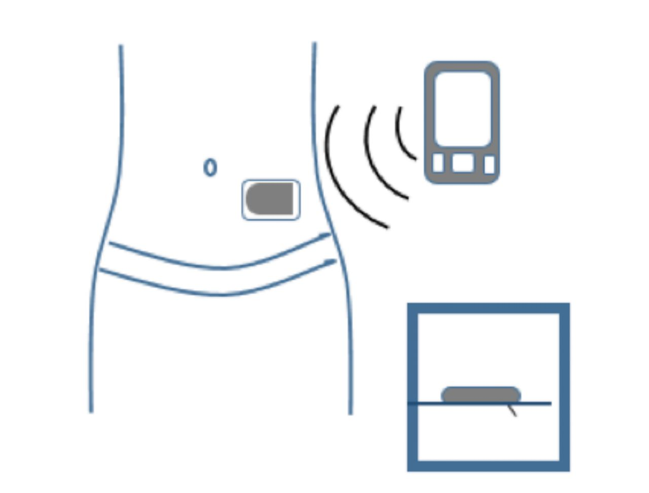 A Clinical Overview of Insulin Pump Therapy for the.