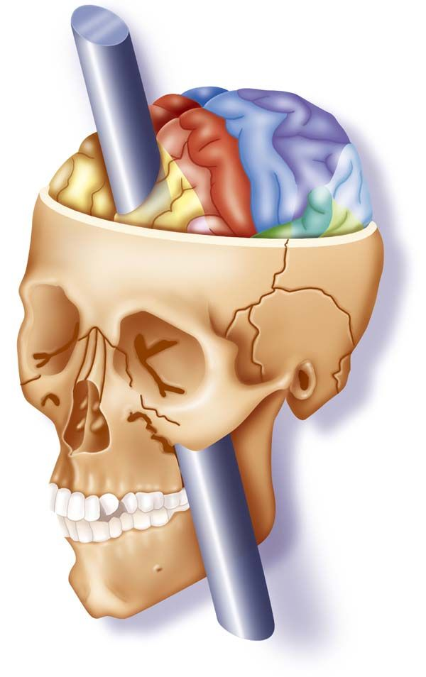 1000+ ideas about Phineas Gage on Pinterest.