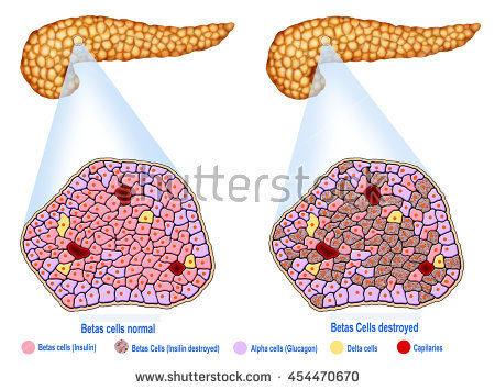 Descriptive Illustration Of The Pancreas And The Pancreatic Islets.