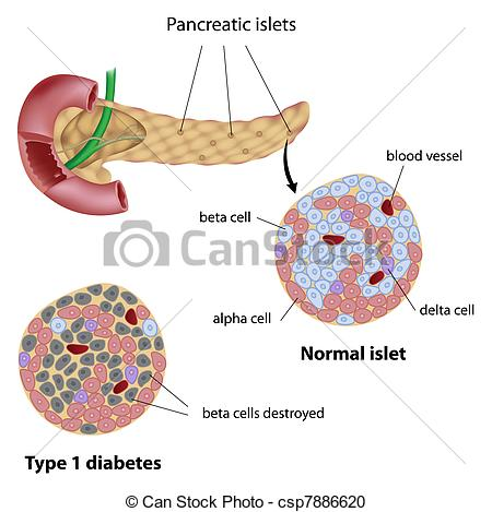 Vector Clipart of Pancreatic islet in diabetes, eps8.