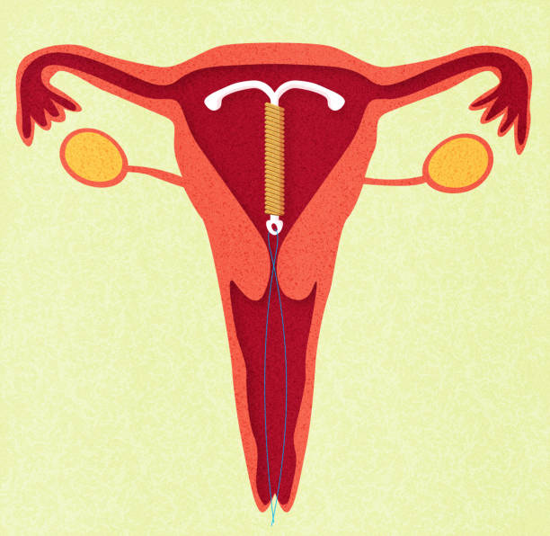 Best Iud Illustrations, Royalty.