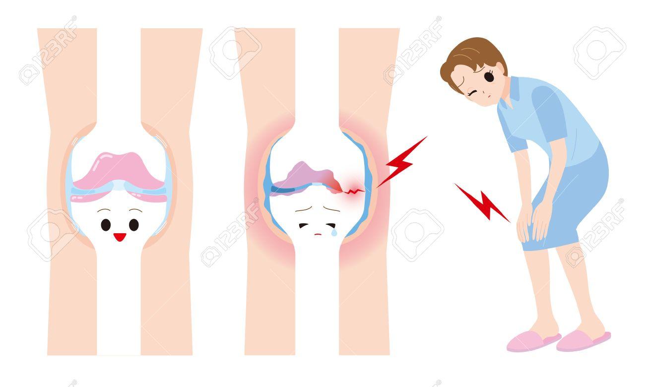 Women joint pain.