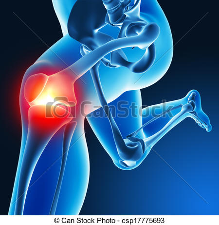 Joint pain Illustrations and Stock Art. 5,301 Joint pain.