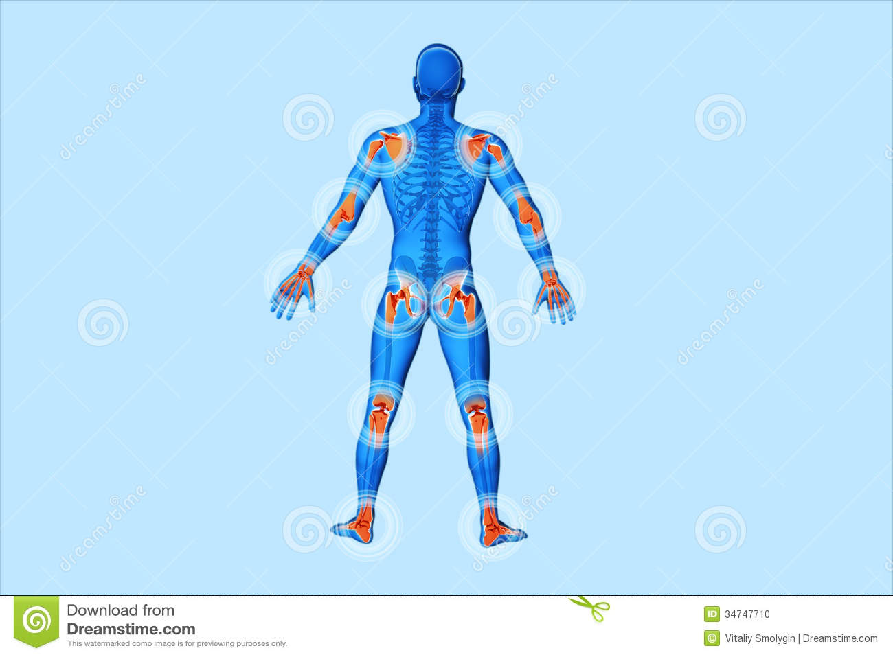 Joint pain clipart.