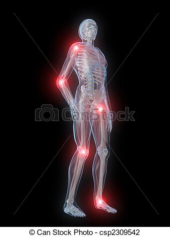 Clip Art of painful joints.