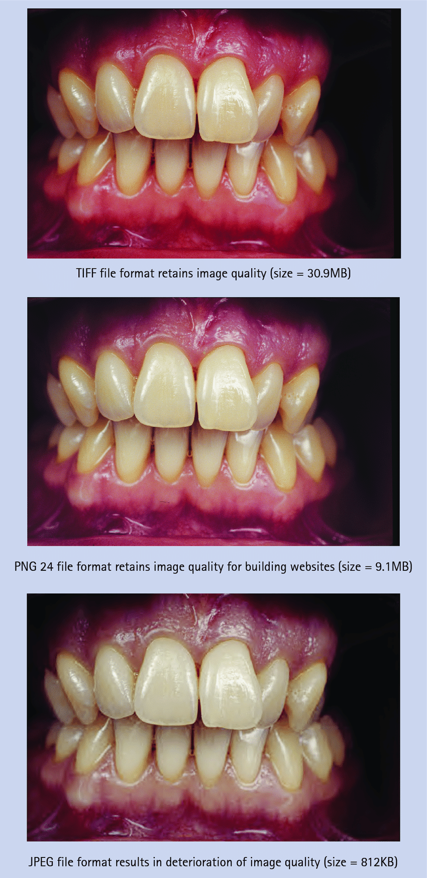 Comparison of an image saved as TIFF, PGN 24 and JPEG, with severe.
