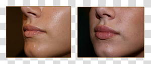 Juvederm PNG clipart images free download.