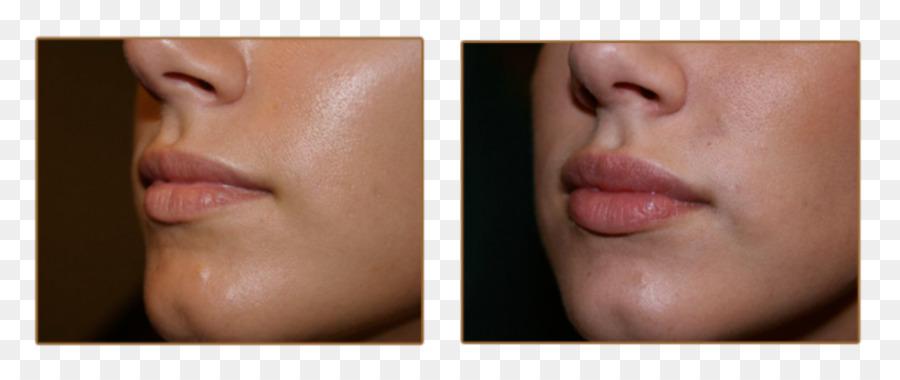 Lip augmentation Injectable filler Juvéderm Cheek.