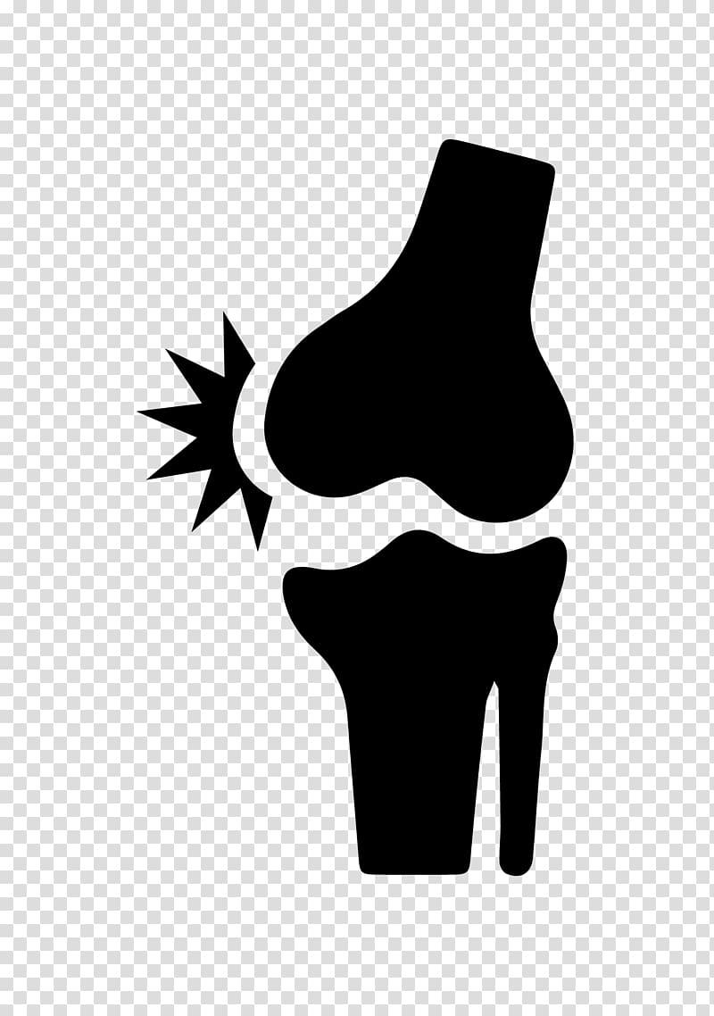 Knee pain Back pain Joint pain, bone transparent background PNG.