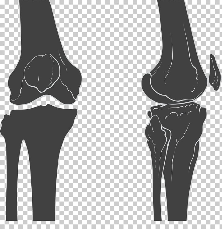 Knee Joint Femur Patella Bone, joint PNG clipart.