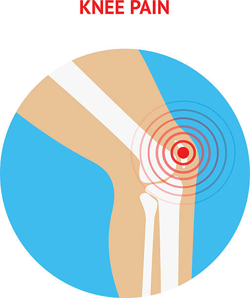 Best Knee Pain Illustrations, Royalty.