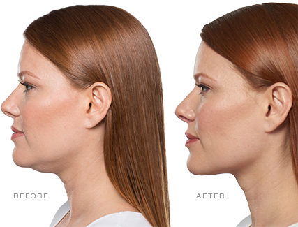 How KYBELLA® Works.