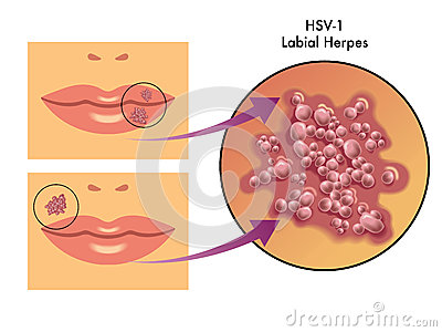 Labial Herpes Royalty Free Stock Photo.
