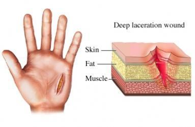 laceration clip art Gallery.