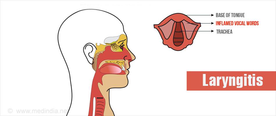 Laryngitis.