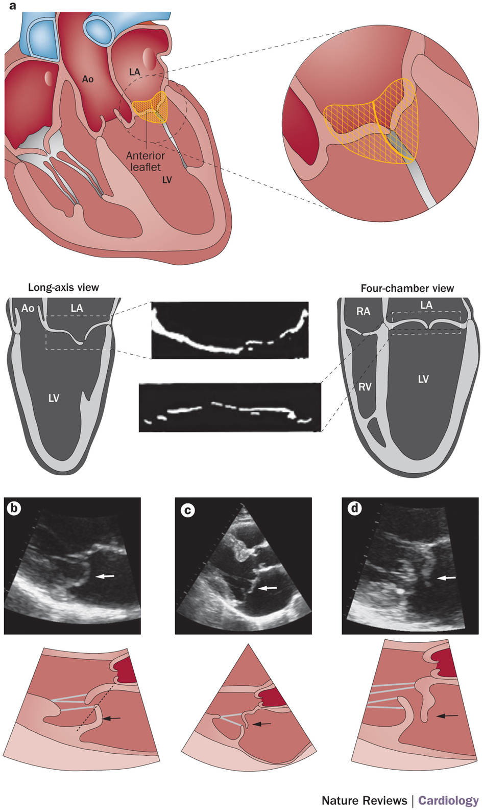 Echocardiographic diagnosis of mitral valve prolapse. : Mitral.