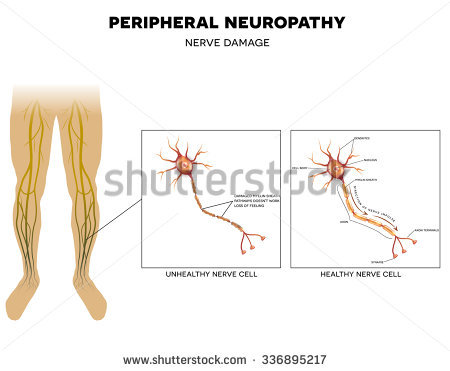 Neuropathy Stock Vectors, Images & Vector Art.