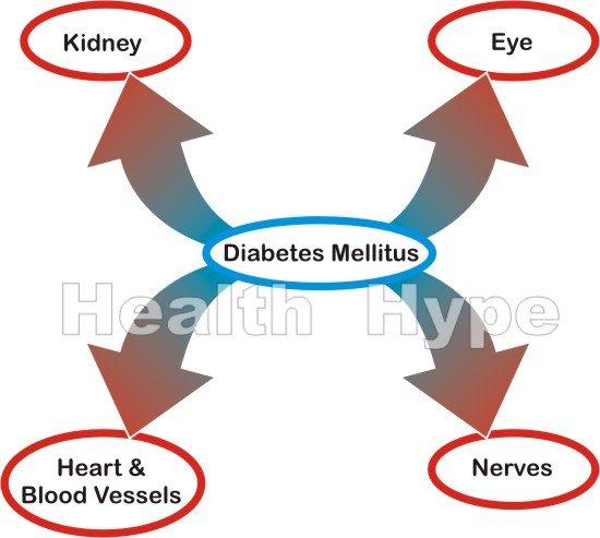 Untreated Diabetes Mellitus Consequences and Symptoms.