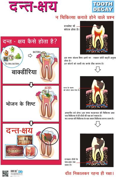 Dental caries.