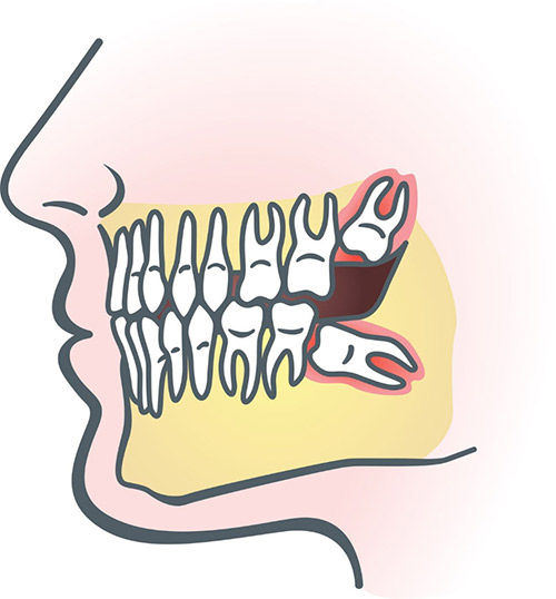 Wisdom Tooth Extraction.