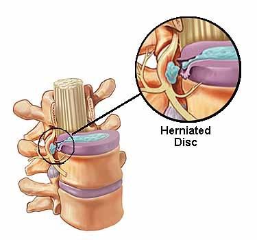 Lumbar Herniated Disc.