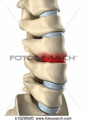 Stock Illustrations of Disc degenarated by osteophyte formation.