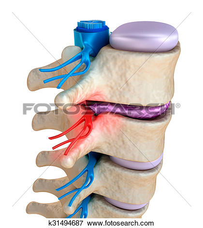Stock Illustration of Spinal cord under pressure of bulging disc.