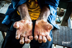 Scourge of leprosy, a disease of the poor, returns to PNG.