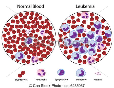 Leukemia Illustrations and Clipart. 838 Leukemia royalty.