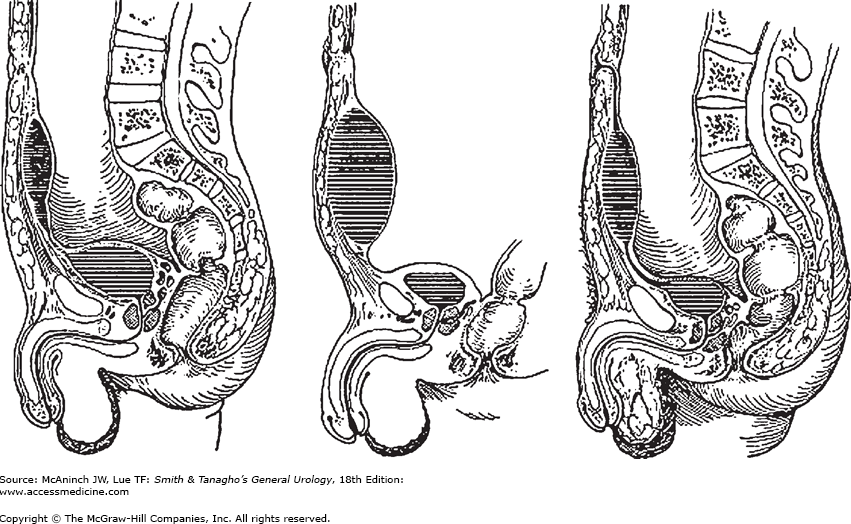 Chapter 38. Disorders of the Bladder, Prostate, & Seminal Vesicles.